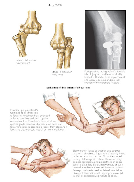 Reduction of dislocation of elbow joint