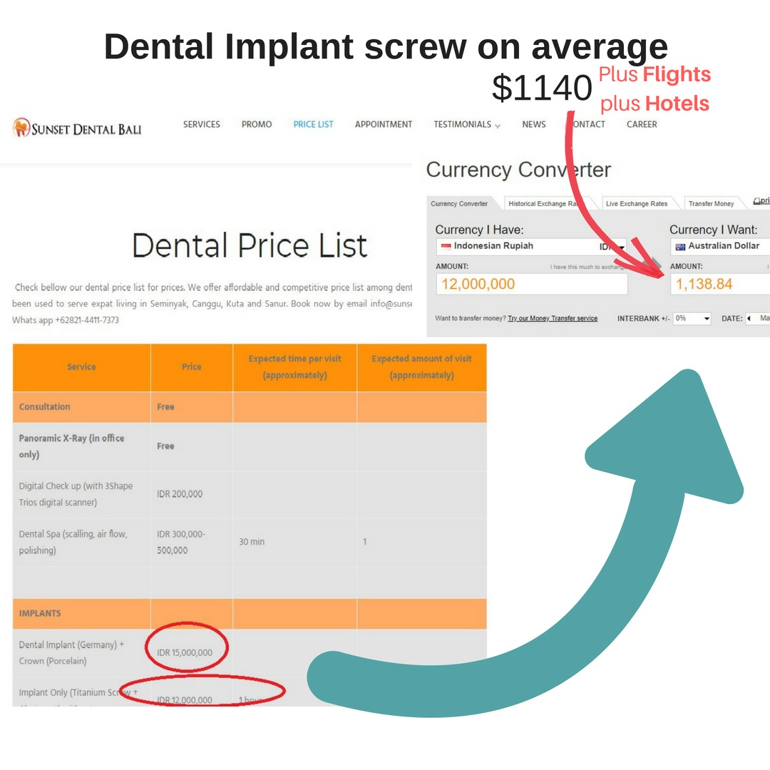 Bali-dental-implants-compare-Perth-dental-implants-prices