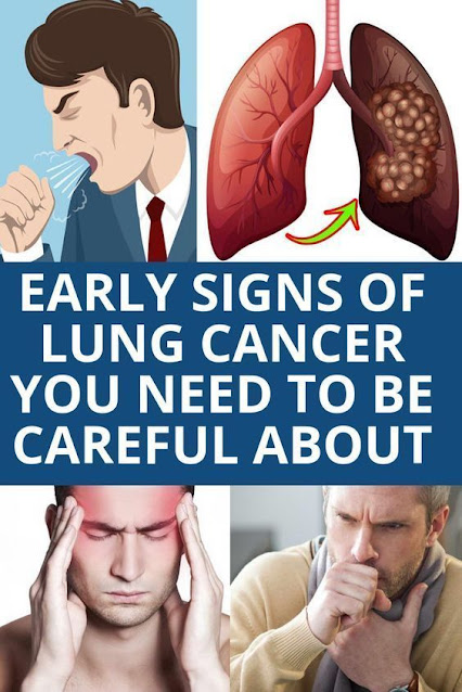 Signs Of Lungs Cancer You Should Aware About These