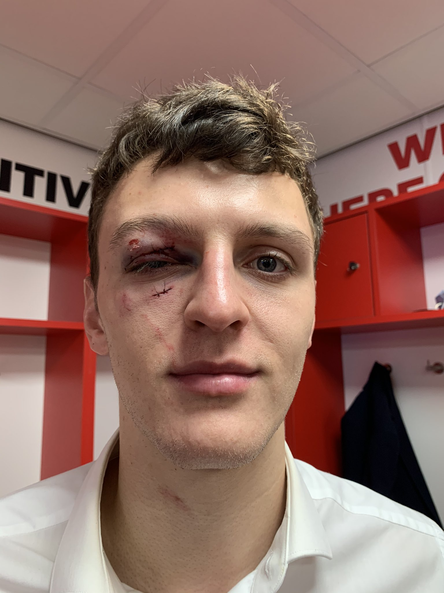 Middlesbrough defender Dael Fry shows a deep gash under his eye