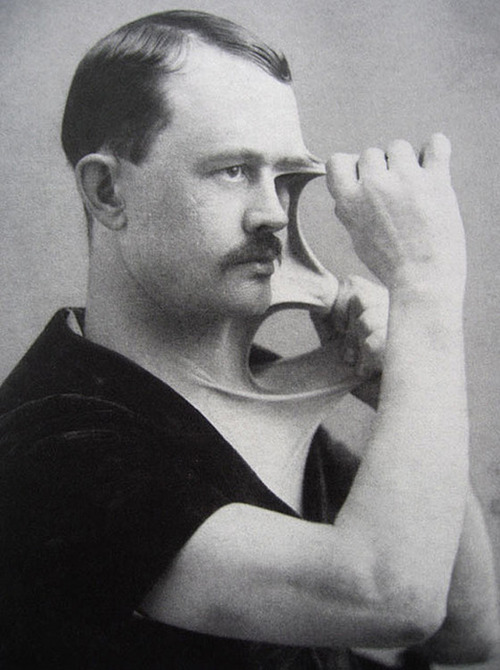 A Man With Stretchy Skin 1900s Vintage Everyday