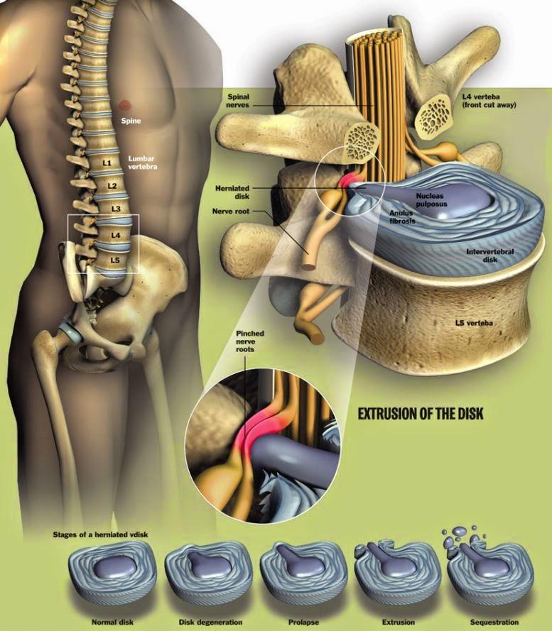 Hernia de disc: care sunt interdictiile dupa operatie?
