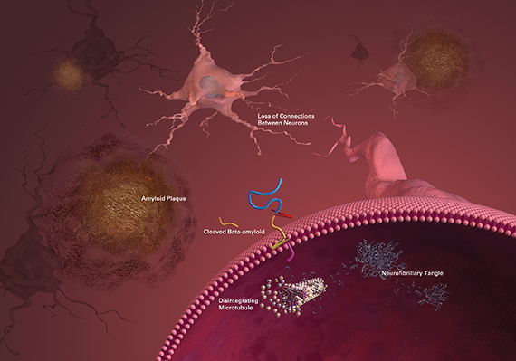 plaques and tangles in Alzheimer's