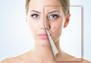 10 Highly Effective Treatment For Adult Acne