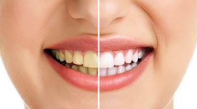 Cara Praktis Dan Mudah Membuat Gigi Putih Dan Bersih