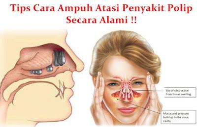 Bahaya Dan Cara Mengatasi Polip Hidung