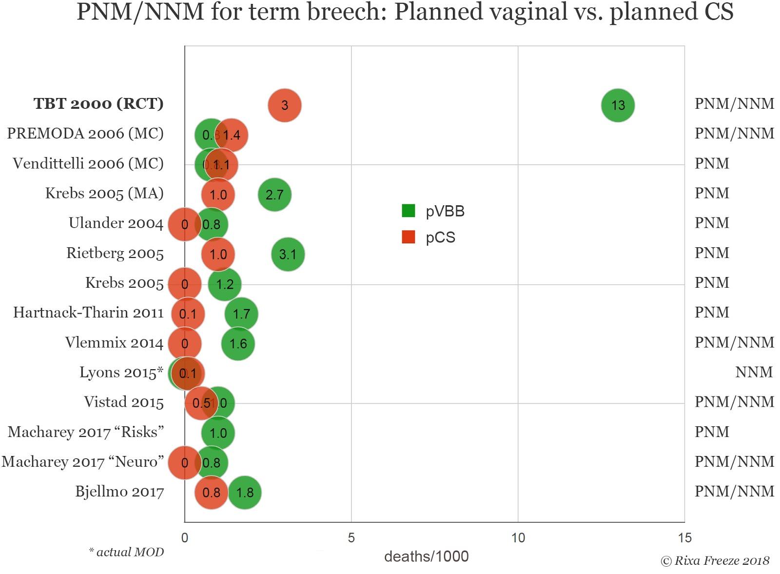 perinatal mortality in term breech birth
