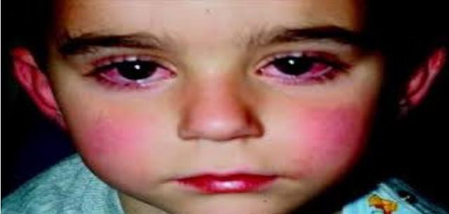 كاواساكي | اعراض مرض كاوازاكي | هل مرض كاواساكي معدي ؟ ..