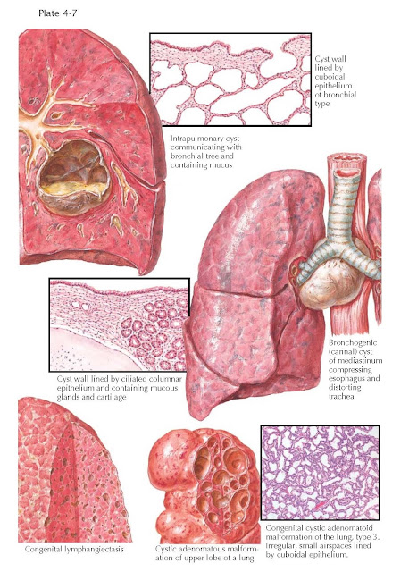 Congenital Lung Cysts