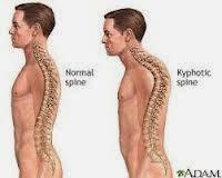 Obat tradisional osteoporosis