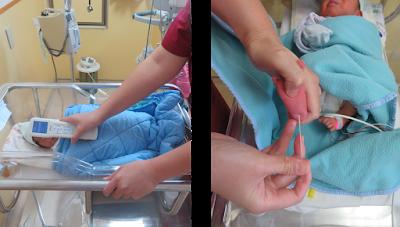 母乳與黃疸,檢測黃疸值