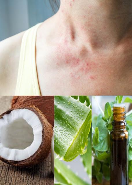 Les 4 remèdes maison les plus efficaces contre la folliculite