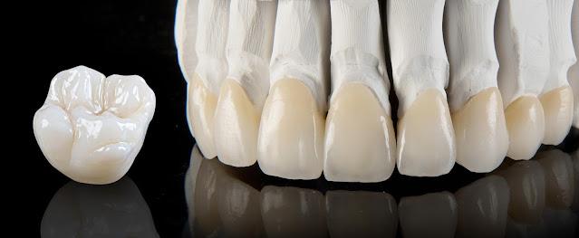 3m lava classic dental crown restoration