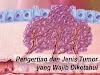 Pengertian Dan Jenis Tumor Yang Wajib Diketahui