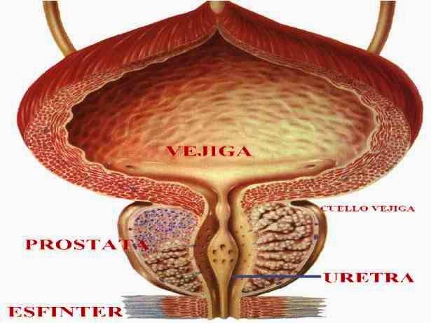 prostatitis crónica y masturbación