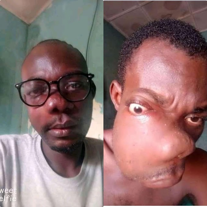 A student suffering from a mouth cancer which need help