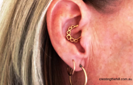 daith piercing - my experience - and how it's going 3 years later
