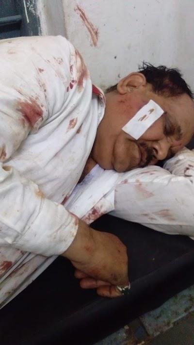 बड़ी खबर सीएमओ पटेरिया एवं सहायक यंत्री मैदा बाला कार दुर्घटना में गंभीर घायल ,ड्राइवर की मौके पर मौत | Shivpuri News