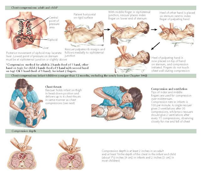 Figure 1-7 External chest compressions.