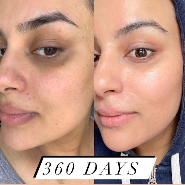 Adoptez ces habitudes de filles qui n'ont jamais eu d'acné
