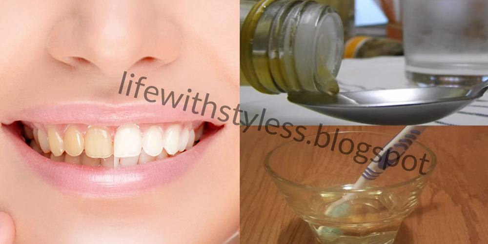 Natural White Teeth With Apple Cider Vinegar Life With Styles