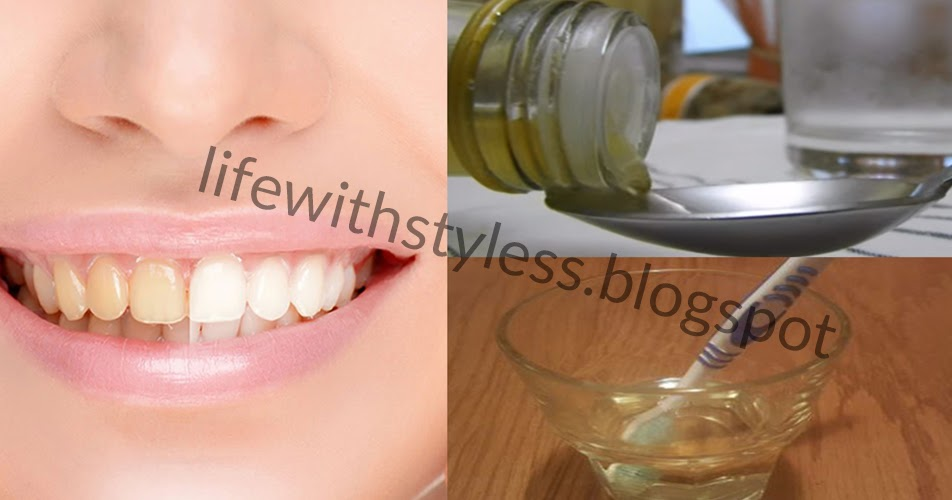 natural white teeth with apple cider vinegar life with styles. Black Bedroom Furniture Sets. Home Design Ideas