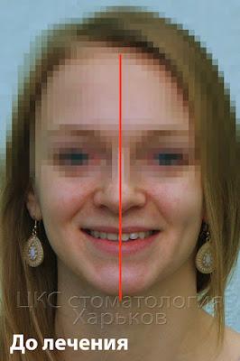 Средняя линия лица пациента до лечения брекетами