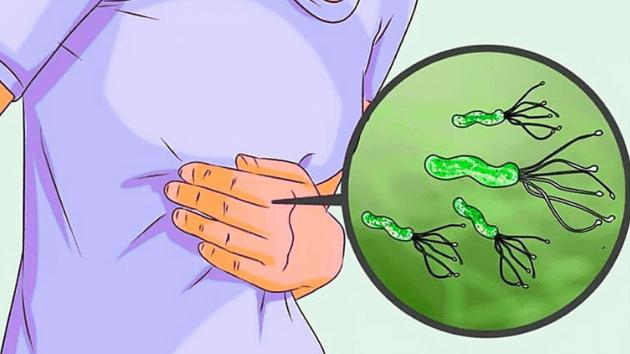 الحل النهائي والاكيد في علاج جرثومة المعدة بالاعشاب ومحو اثارها للابد