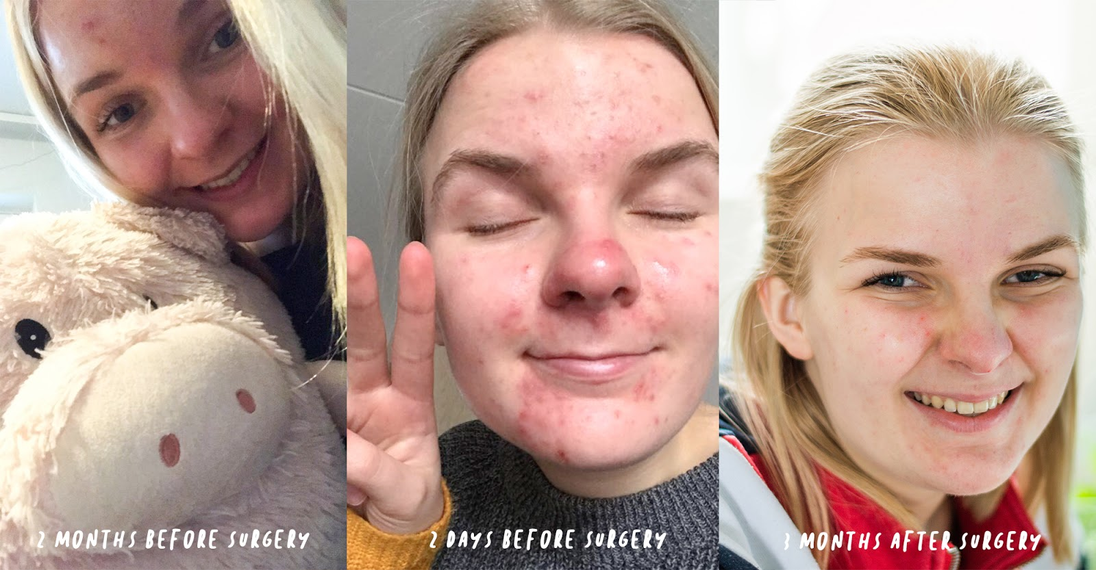 SKINCARE ROUTINE CYSTIC ACNE OVARIAN CYST REMOVAL SURGERY BY ANNA TWENTY SEVEN