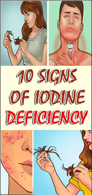 10 signs of iodine deficiency