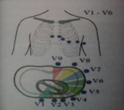 Cara Memasang Sandapan EKG (ECG LEADS)