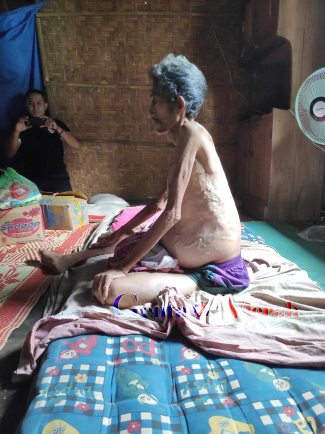 Sambangi Pendrerita Tumor Ganas, TKJB Harapkan Pemda Lampura Bantu Pengobatan Basri