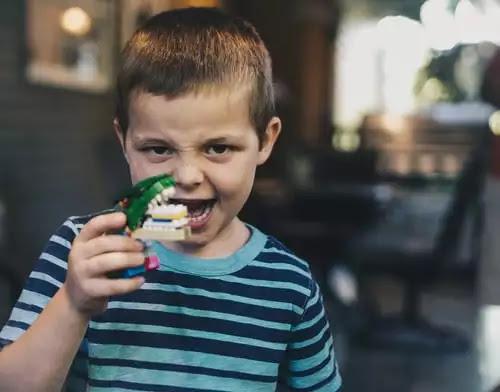 علاج التسوس عند الأطفال المسببات وسبل العلاج.