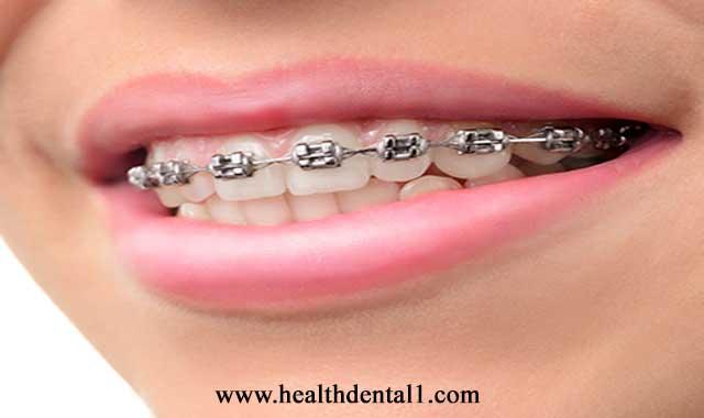 انواع تقويم الاسنان ونصائح الاستخدام