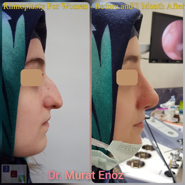 Rhinoplasty For Women - Before and 1 Months After - Female Nose Job Turkey
