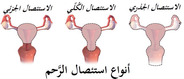 ما هي عملية استئصال الرحم و تفاصيل تحضيرها