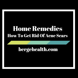 How to Get Rid of Old Acne Scars