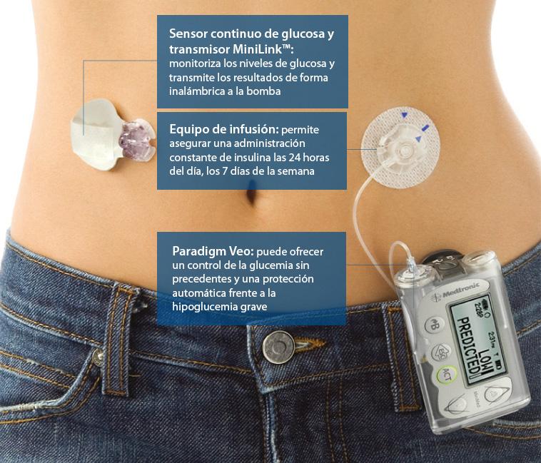 Uso microinfusora insulina