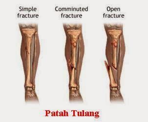 Obat Patah Tulang