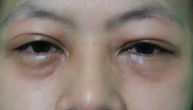 Penyebab Dan Cara Mengatasi Mata Bengkak