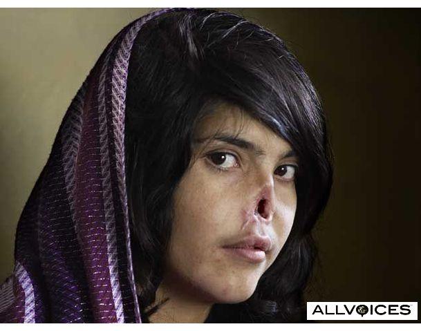 Live facebook: Photograph of Bibi Aisha, an 18-year-old