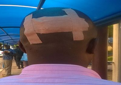 Husband fights Robbers with Bare Hands for Beating His Wife