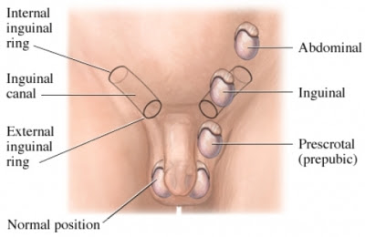 undescended testicle treatment