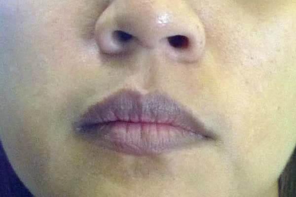 Trị môi thâm cho nam giới