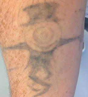 Tattoo fading after two years of laser removal