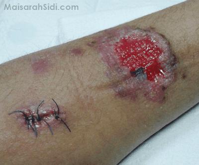 luka sporo pada manusia