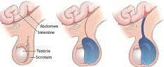 हाइड्रोसील (अंडकोष की सूजन) का घरेलू इलाज करे दर्द की समस्या खत्म -  hydrocele home treatmetnt in hindi