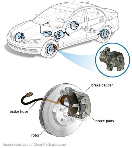 Symptômes de l'étrier de frein et coût de remplacement