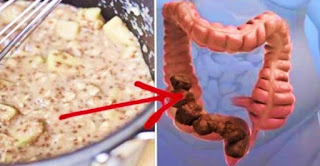 Remove 12 Pounds Of Toxins From The Colon