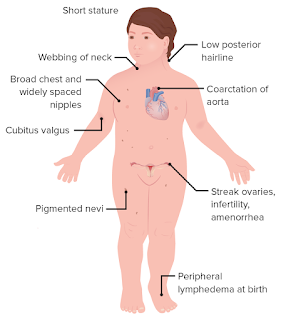 turner syndrome causes